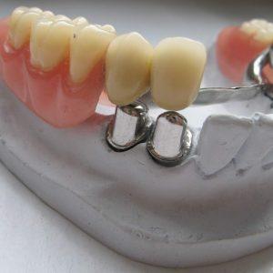 Условно-съемный протез на имплантах, стоматология на каширке