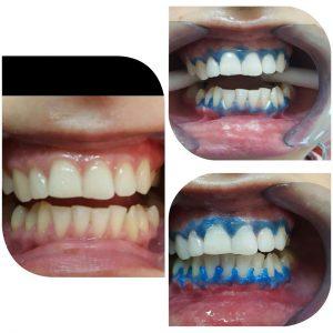 отбеливание зубов на варшавке